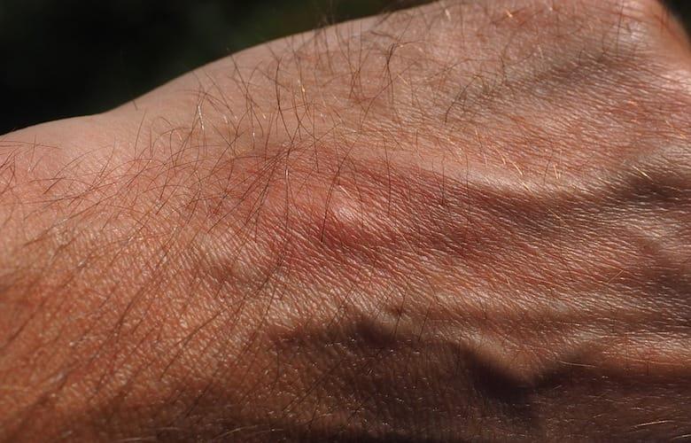 لیمو و سیر باعث دور شدن پشههای میشوند
