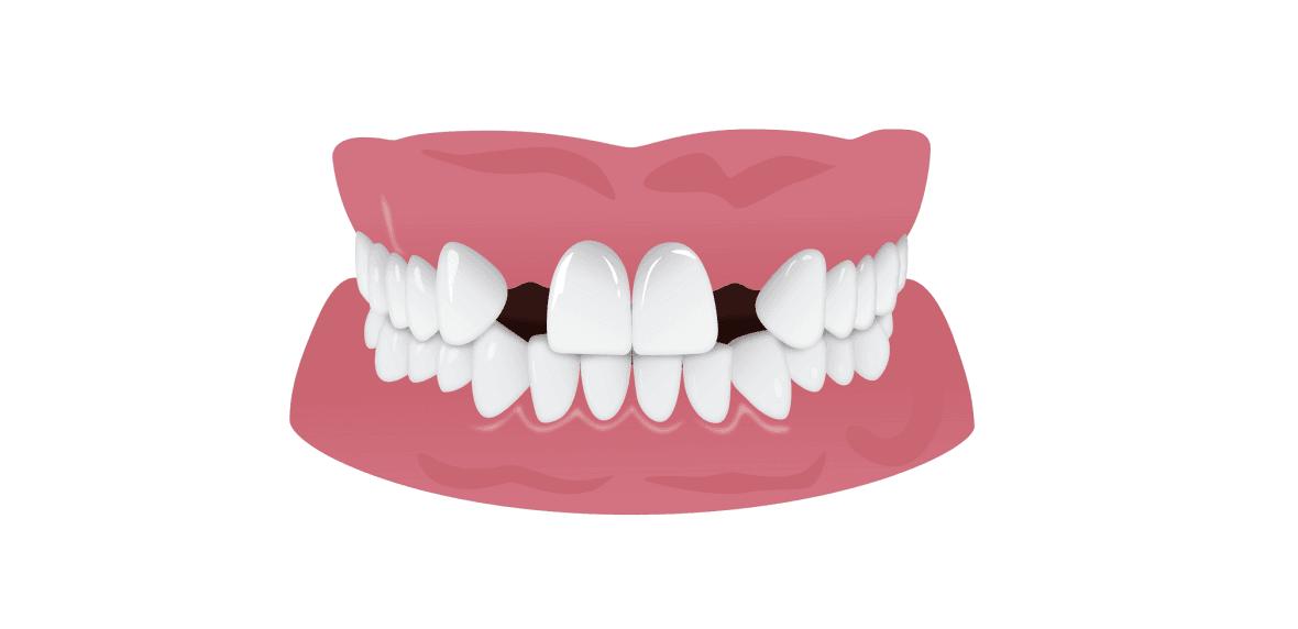 موارد مضر برای دندان