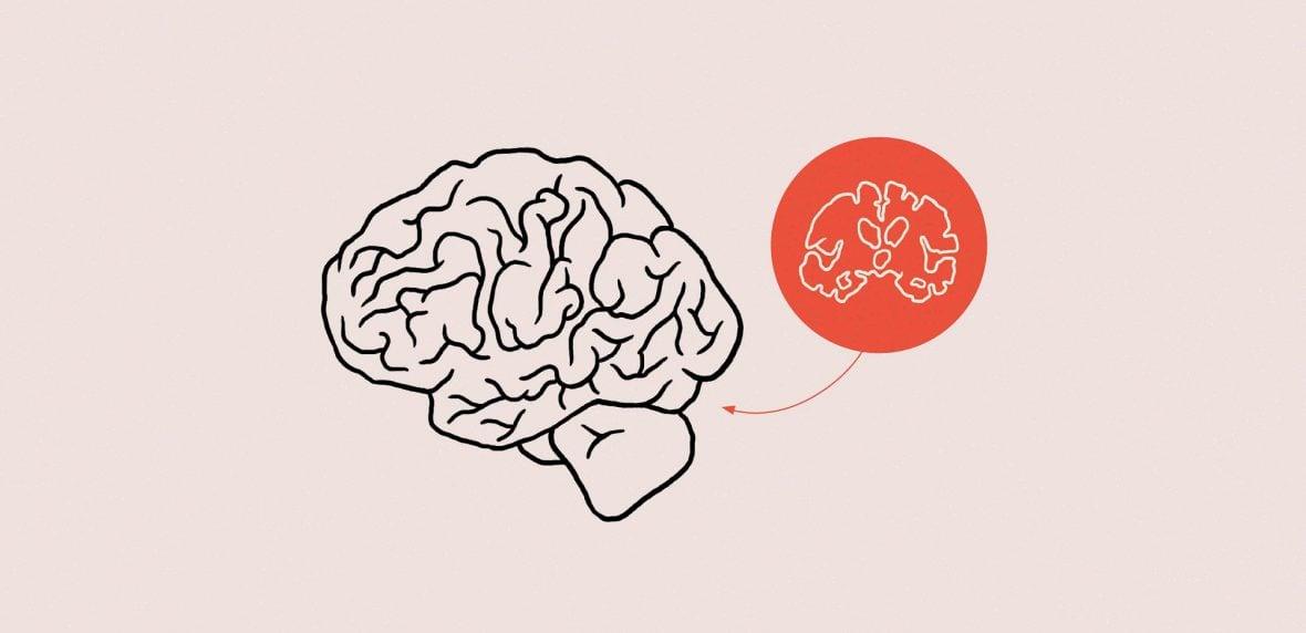 ارتباط کوچک شدن مغز و تنهایی