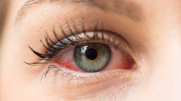 آبگرفتگی چشم : چرا چشمانمان بیش از حد اشک تولید میکنند؟