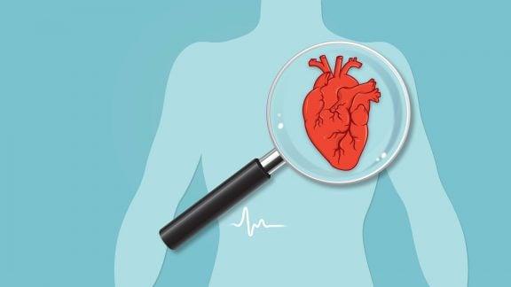 30 علایم هشداردهنده بیماری قلبی